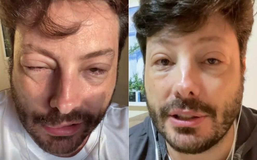 Gentili aparece com rosto desfigurado após crise alérgica: 'Poderia ir pro  saco' · Notícias da TV